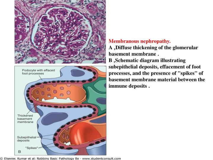 Membranous nephropathy.
