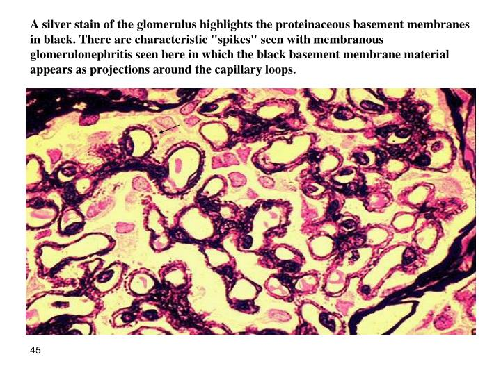 "A silver stain of the glomerulus highlights the proteinaceous basement membranes in black. There are characteristic ""spikes"" seen with membranous glomerulonephritis seen here in which the black basement membrane material appears as projections around the capillary loops"