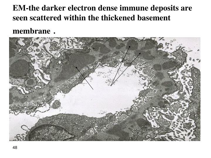 EM-the darker electron dense immune deposits are seen scattered within the thickened basement membrane
