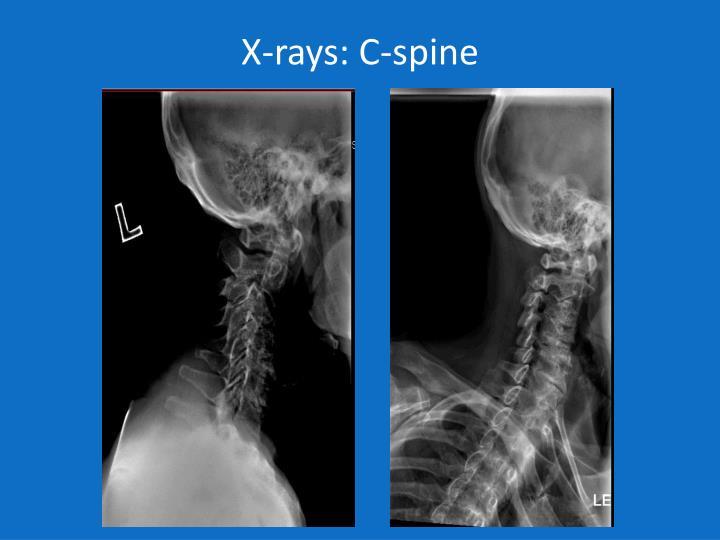 X-rays: C-spine