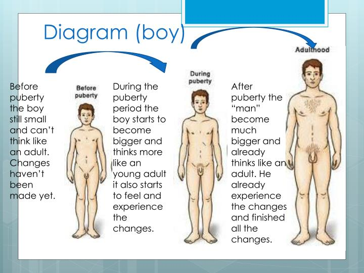 Diagram (boy)