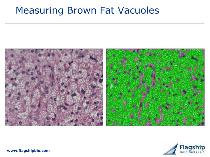 Measuring Brown Fat Vacuoles