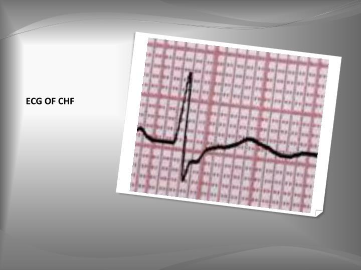 ECG OF CHF