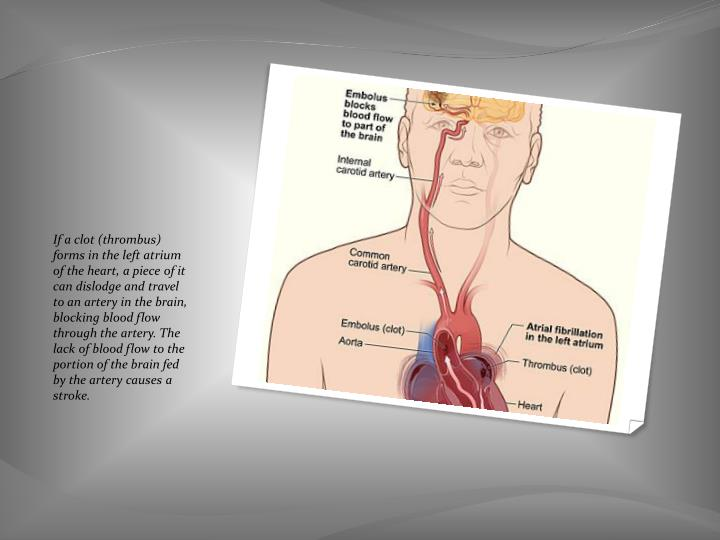If a clot (thrombus) forms in the left atrium of the heart, a piece of it can dislodge and travel to an artery in the brain, blocking blood flow through the artery. The lack of blood flow to the portion of the brain fed by the artery causes a stroke.