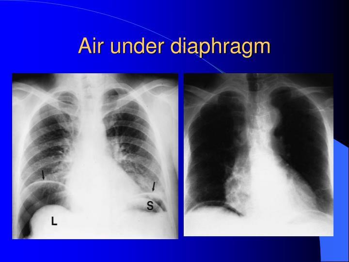 Air under diaphragm