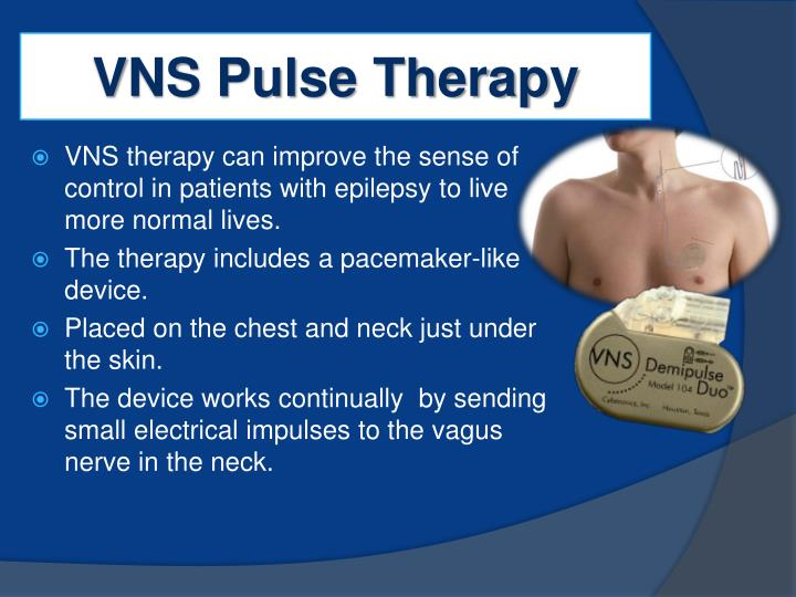 VNS Pulse Therapy