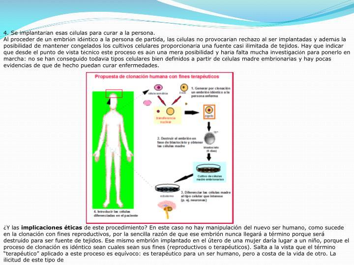 4. Se implantar