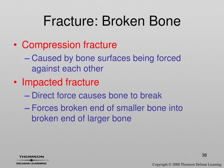 Fracture: Broken Bone