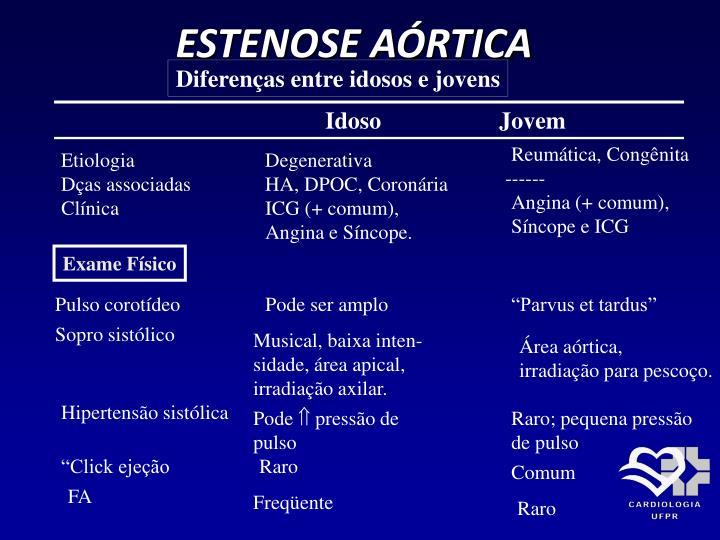 ESTENOSE AÓRTICA