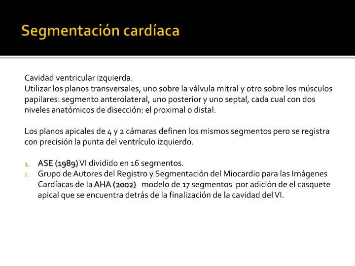 Segmentación cardíaca