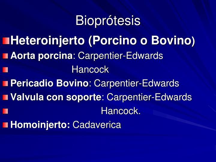 Bioprótesis
