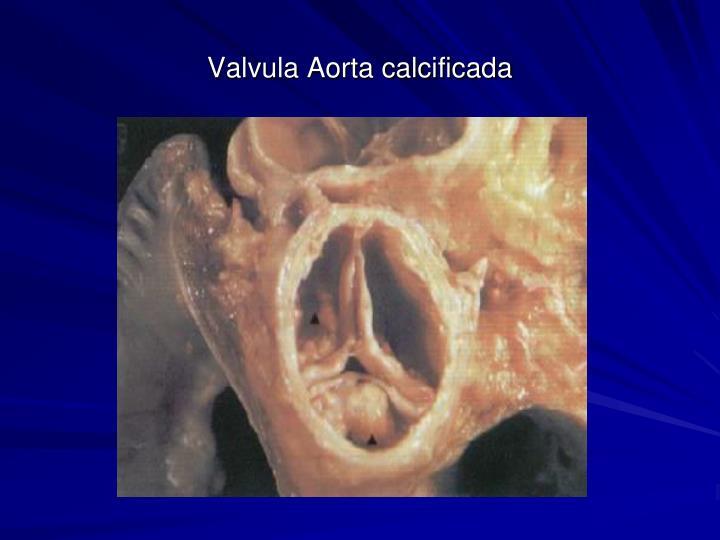 Valvula Aorta calcificada