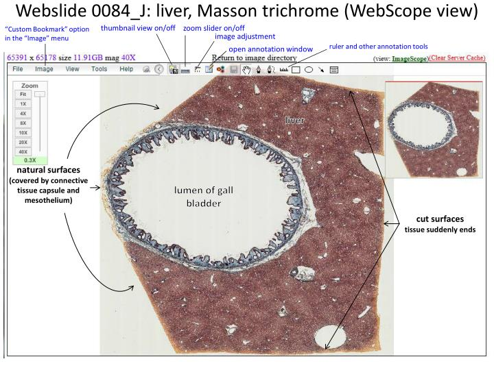 webslide 0084 j liver masson trichrome webscope view