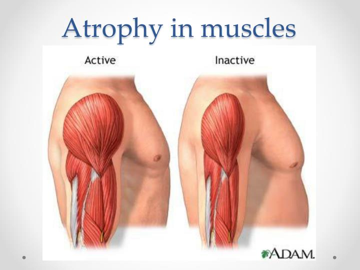 Atrophy in muscles