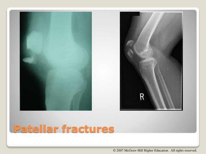 Patellar fractures