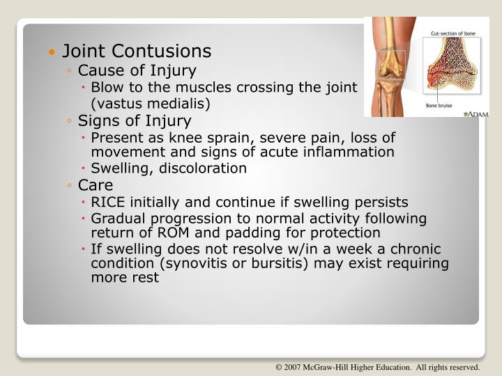 Joint Contusions