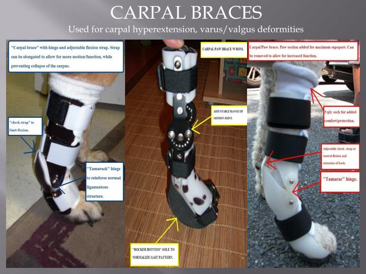 CARPAL BRACES