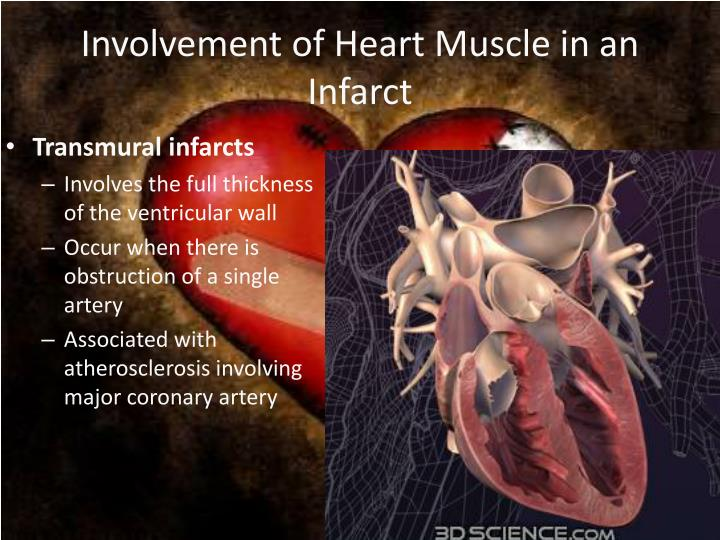 Involvement of Heart Muscle in an Infarct