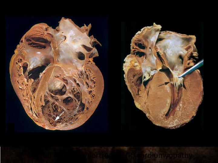 Dilated (L) and hypertrophic (R) cardiomyopathy