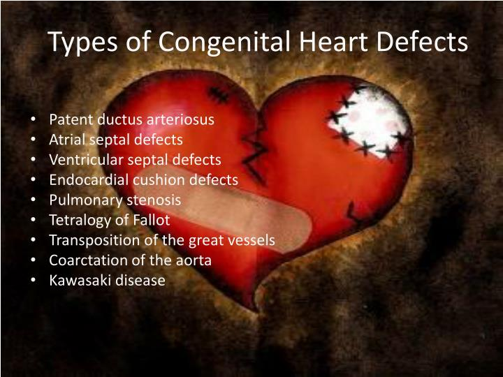 Types of Congenital Heart Defects