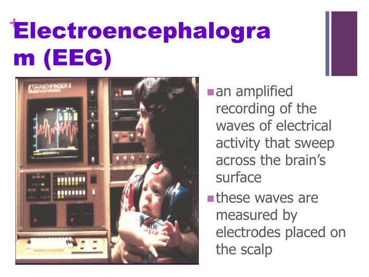 Electroencephalogram (EEG)