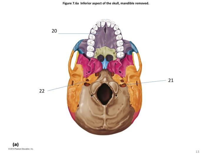 Figure 7.6a  Inferior aspect of the skull, mandible removed.