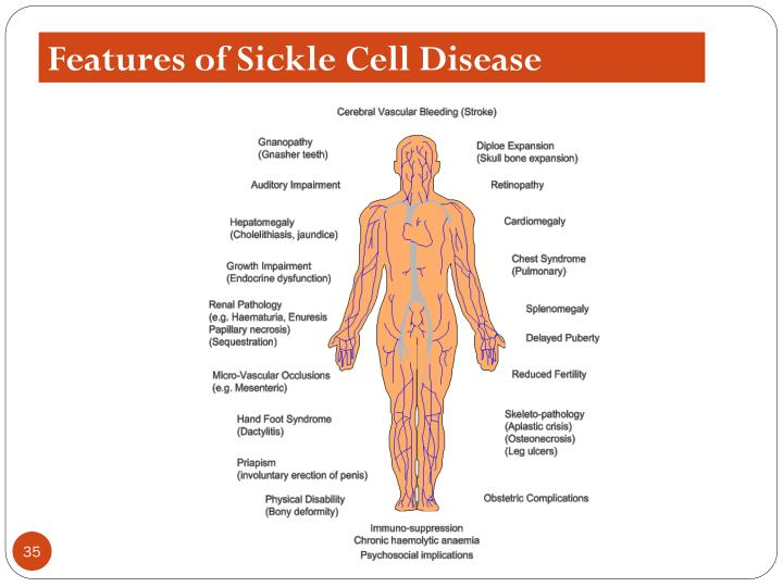 Features of Sickle Cell Disease