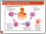 therapy in aplastic anemia