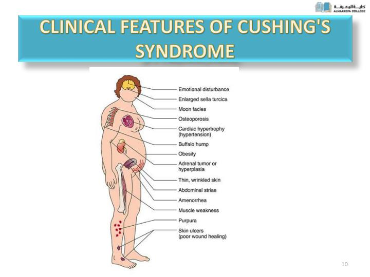 Clinical features of Cushing's syndrome
