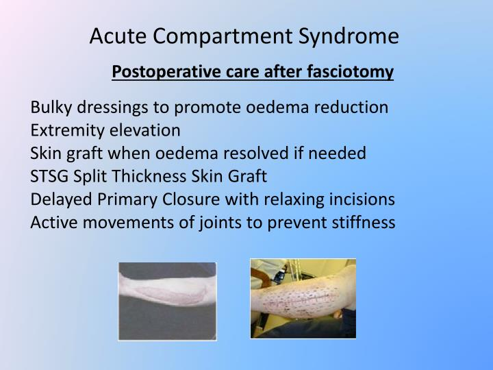 case study on compartment syndrome essay The incidence of compartment syndrome depends on the patient population studied and the etiology of the syndrome in a study by qvarfordt and colleagues, 14% of patients with leg pain were noted to have anterior compartment syndrome []  compartment syndrome was seen in 1-9% of leg fractures.