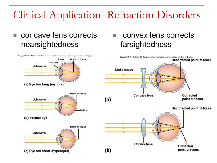 concave lens corrects nearsightedness