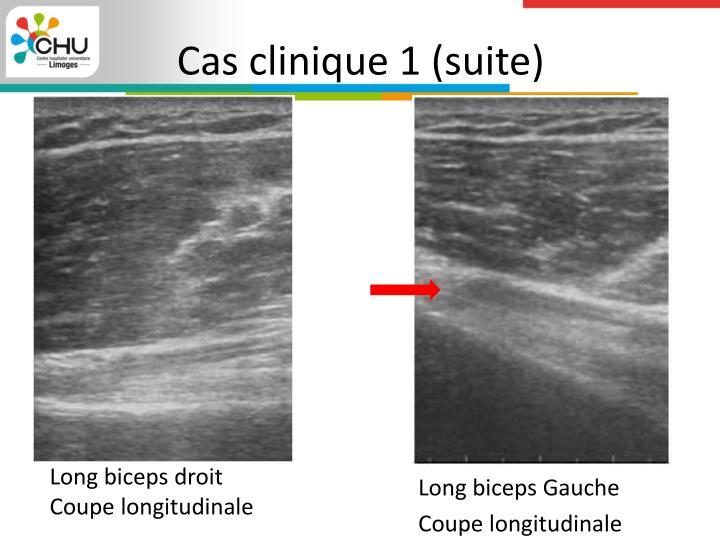 Cas clinique 1 (suite)