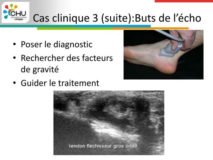 Cas clinique 3 (suite):Buts de l'écho