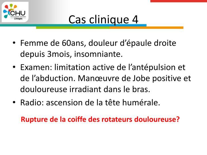Cas clinique 4