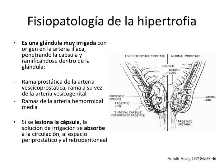 Fisiopatología de la hipertrofia