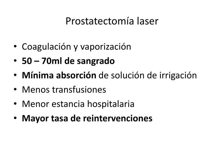Prostatectomía