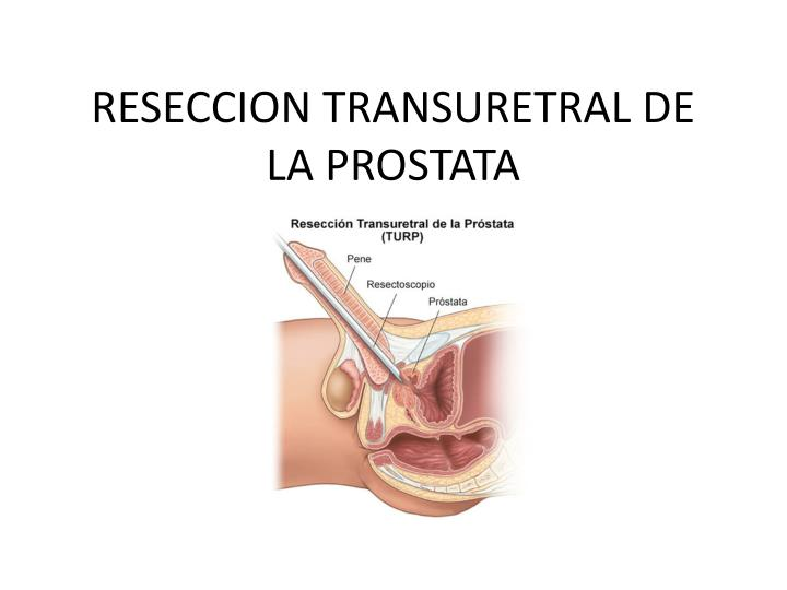 RESECCION TRANSURETRAL DE LA PROSTATA