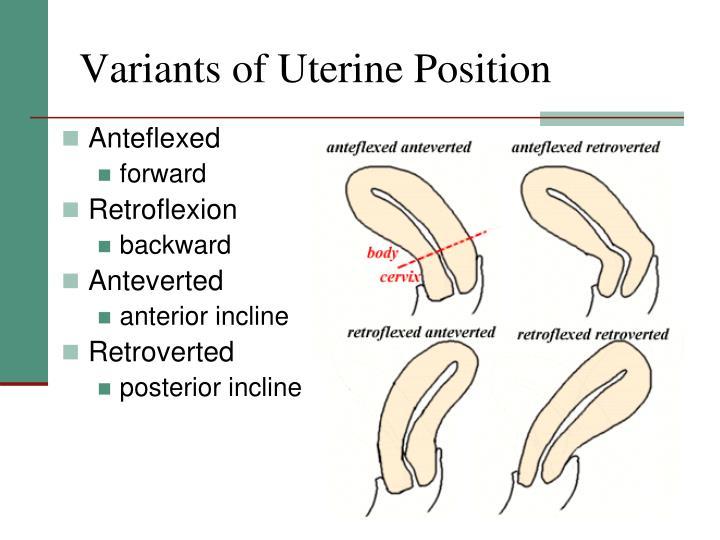 Variants of Uterine Position
