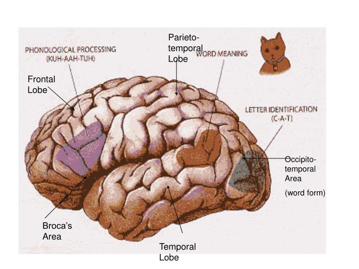 Parieto-temporal Lobe