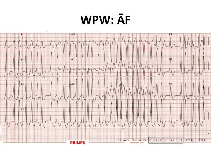 WPW: ĀF