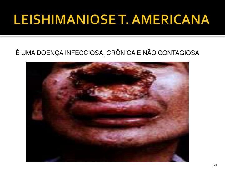 LEISHIMANIOSE T. AMERICANA