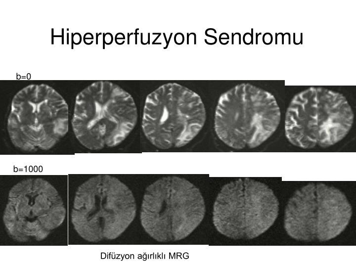 Hiperperfuzyon Sendromu