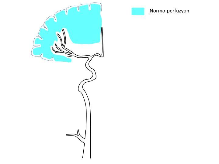 Normo-perfuzyon