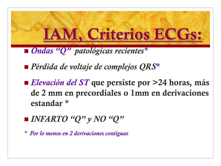 IAM, Criterios ECGs: