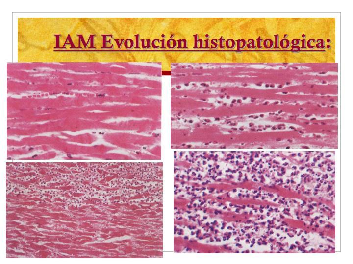 IAM Evolución histopatológica