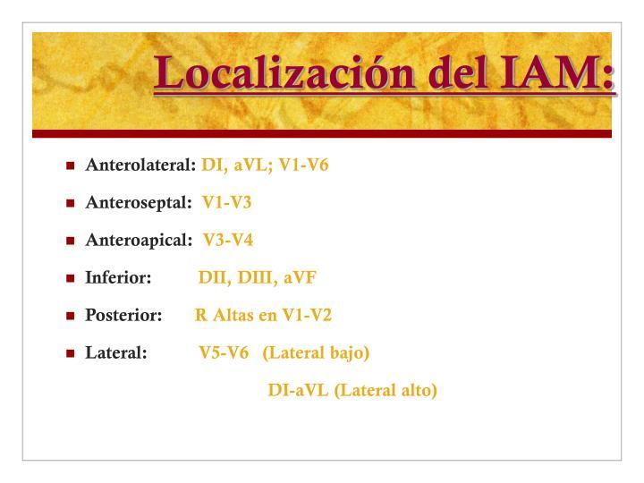 Localización del IAM: