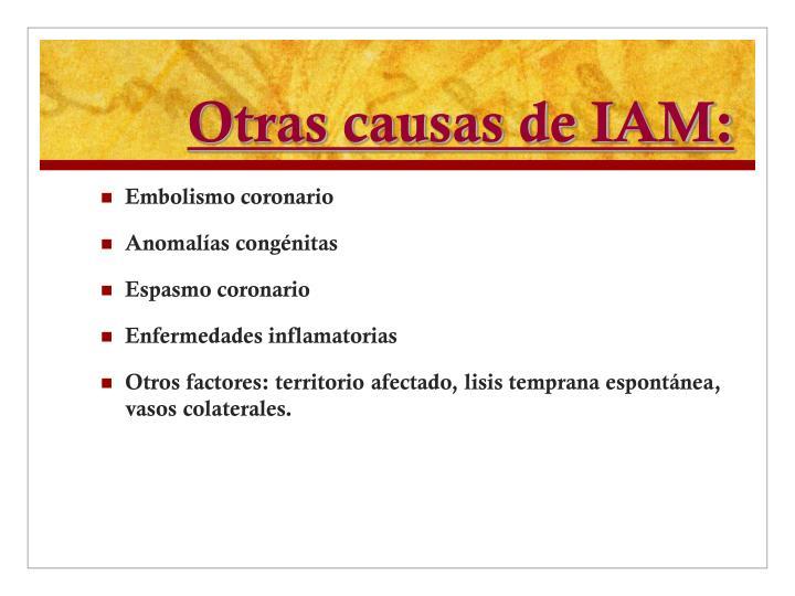 Otras causas de IAM: