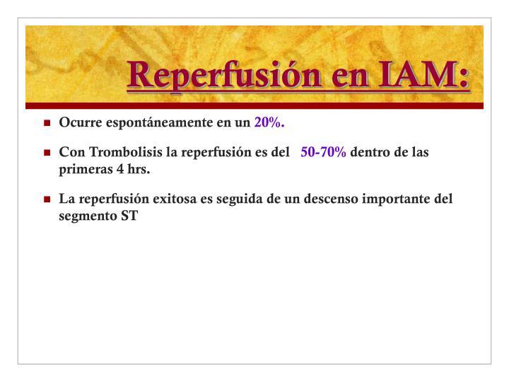 Reperfusión en IAM:
