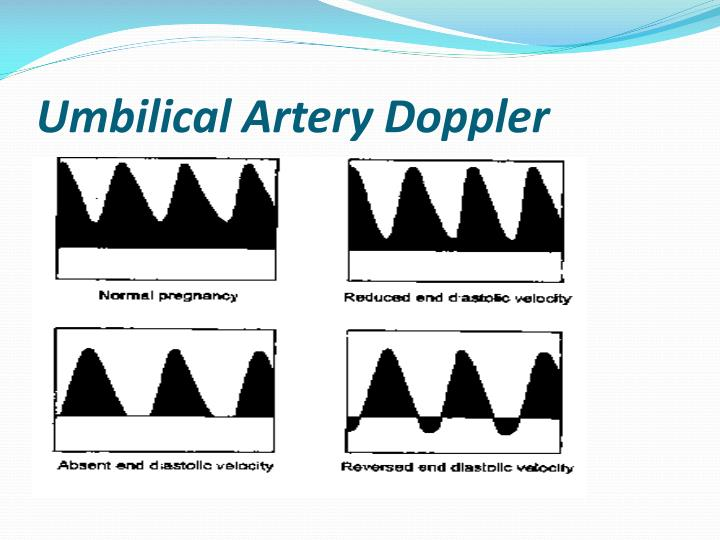PPT - Fetal assessment PowerPoint Presentation