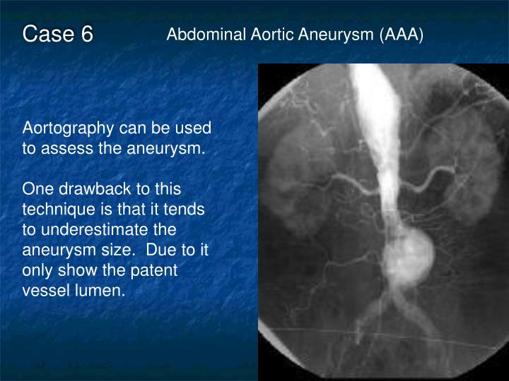 abdominal aortic aneurysm essay Abdominal aortic aneurysm: pictorial review of common appearances and complications pictorial review of common appearances and complications.